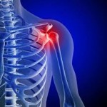 Avoiding Different Types Of Shoulder Injuries