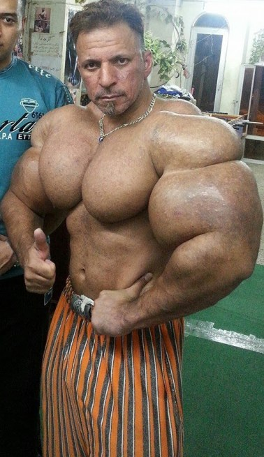 SEO or Synthol, Big Muscles Effortlessly • Bodybuilding